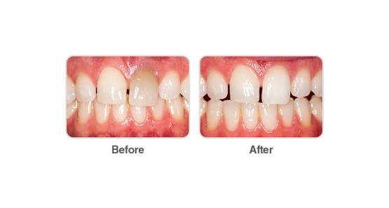 Избелване на девитализирани (умъртвени) зъби